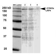 Mouse Anti-LRP4 Antibody [S207-27] used in Western Blot (WB) on Rat brain membrane lysate (SMC-418)