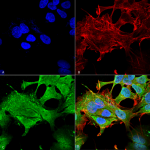 SMC-430-Notch1-Antibody-S253-32-ICC-IF-Human-Neuroblastoma-cell-line-SK-N-BE-60X-Composite-1.png