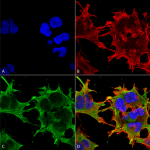 SMC-432-SUR1-and-SUR2B-Antibody-S323A-31-ICC-IF-Human-Neuroblastoma-cell-line-SK-N-BE-60X-Composite-1.png