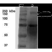 Mouse Anti-SUR1/SUR2B Antibody [S323A-31] used in Western Blot (WB) on Rat Brain Membrane   (SMC-432)
