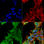 SMC-433-Alpha-2C-Adrenergic-Receptor-Antibody-S330A-51-ICC-IF-Human-Neuroblastoma-cell-line-SK-N-BE-60X-Composite-1.png
