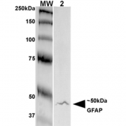 Mouse Anti-GFAP Antibody [S206A-8] used in Western Blot (WB) on Rat Brain Membrane (SMC-441)