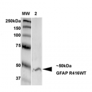 Mouse Anti-GFAP Antibody [S206B-9] used in Western Blot (WB) on Rat Brain Membrane (SMC-442)