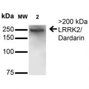 Mouse Anti-LRRK2/Dardarin Antibody [S231B-34] used in Western Blot (WB) on Rat Brain Membrane (SMC-445)
