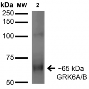 Mouse Anti-GRK (pan) Antibody [S145-20] used in Western Blot (WB) on Monkey COS cells transfected with untagged GRK6 (SMC-449)