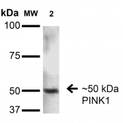Mouse Anti-PINK1 Antibody [S4-15] used in Western Blot (WB) on Rat Brain (SMC-450)