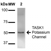 Mouse Anti-TASK1 Potassium Channel Antibody [S374-48] used in Western Blot (WB) on Rat Brain Membrane (SMC-473)