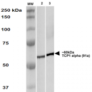 Rat Anti-TCP1 alpha Antibody [91a] used in Western Blot (WB) on Human A431 and HEK293 cell lysates (SMC-479)