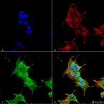 SMC-487-Ankyrin-R-Antibody-S388A-10-ICC-IF-Human-Neuroblastoma-cell-line-SK-N-BE-60X-Composite-1.png