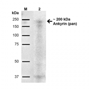 Mouse Anti-Ankyrin-pan Antibody [S388A-60] used in Western Blot (WB) on Rat Brain (SMC-488)