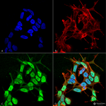 SMC-490-Nav-beta-3-Antibody-S396-29-ICC-IF-Human-Neuroblastoma-cell-line-SK-N-BE-60X-Composite-1.png