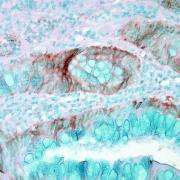 Rabbit Anti-HSP70 Antibody used in Immunohistochemistry (IHC) on Human colon carcinoma (SPC-103)