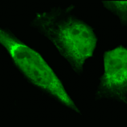 Rabbit Anti-GRP78 Antibody used in Immunocytochemistry/Immunofluorescence (ICC/IF) on Human Heat Shocked HeLa Cells (SPC-107)