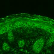 Rabbit Anti-Calnexin Antibody used in Immunohistochemistry (IHC) on Mouse backskin (SPC-108)