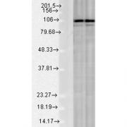 Rabbit Anti-Calnexin Antibody used in Western blot (WB) on Rat Tissue lysates (SPC-108)