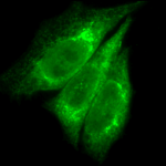SPC-109_KDEL_Antibody_ICC-IF_Human_Heat-Shocked-HeLa-Cells_100x_Composite.png
