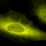 SPC-119_Ubiquitin_Antibody_ICC-IF_Human_Heat-Shocked-HeLa-Cells_100x_Composite.png