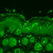 Rabbit Anti-Ubiquitin Antibody used in Immunohistochemistry (IHC) on Mouse backskin (SPC-119)