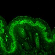 Rabbit Anti-ERK1 Antibody used in Immunohistochemistry (IHC) on Mouse backskin (SPC-120)
