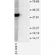 Rabbit Anti-ERK1 Antibody used in Western blot (WB) on Human Cell line lysates (SPC-120)