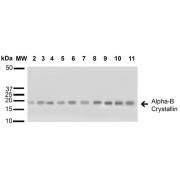 Rabbit Anti-Alpha B Crystallin Antibody used in Western blot (WB) on A431, HCT116, HeLa, HepG2, HEK293, HUVEC, Jurkat, MCF7, PC3 and T98G cell lysates (SPC-126)