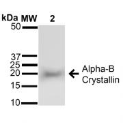 Rabbit Anti-Alpha B Crystallin Antibody used in Western blot (WB) on Brain cell lysates (SPC-126)