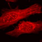 SPC-126_Alpha-B-Crystallin_Antibody_ICC-IF_Human_Heat-Shocked-HeLa-Cells_100x_Composite.png