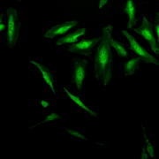 Rabbit Anti-Alpha B Crystallin Antibody used in Immunocytochemistry/Immunofluorescence (ICC/IF) on Human Heat Shocked HeLa Cells (SPC-126)