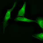 SPC-127_Calnexin_Antibody_ICC-IF_Human_HeLa-cells_1.png