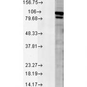 Rabbit Anti-Calnexin Antibody used in Western blot (WB) on Rat tissue mix (SPC-127)