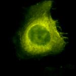 SPC-142_CDC37_Antibody_ICC-IF_Human_Heat-Shocked-HeLa-Cells_100x_Composite.png