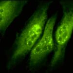 SPC-145_p33-ING1_Antibody_ICC-IF_Human_Heat-Shocked-HeLa-Cells_100x_Composite.png