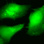 SPC-148_AKT2_Antibody_ICC-IF_Human_Heat-Shocked-HeLa-Cells_100x_Composite.png