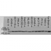 Rabbit Anti-AKT2 Antibody used in Western blot (WB) on multiple Cell line lysates (SPC-148)