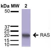 Rabbit Anti-RAS Antibody used in Western blot (WB) on Brain Cortex cell lysates (SPC-173)