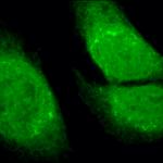 SPC-180_GRP78-Bip_Antibody_ICC-IF_Human_Heat-Shocked-HeLa-Cells_100x_Composite.png
