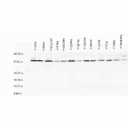 Rabbit Anti-AHA1 Antibody used in Western blot (WB) on multiple Cell line lysates (SPC-183)