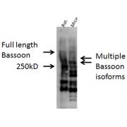 Rabbit Anti-Bassoon Antibody used in Western blot (WB) on Mouse, Rat brain cell lysates (SPC-198)