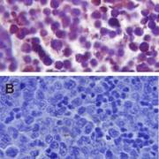Rabbit Anti-TLR4 Antibody used in Immunohistochemistry (IHC) on Mouse Spleen tissue (SPC-200)