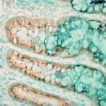 SPC-200_TLR4_Antibody_IHC_Mouse_colon-colitis_1.png
