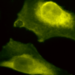 SPC-205_SOD1-UBB_Antibody_ICC-IF_Human_HeLa-Cells_100x_Composite.png