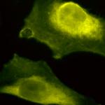 SPC-205_SOD1-UBB_Antibody_ICC-IF_Human_HeLa-Cells_100x_Composite.png