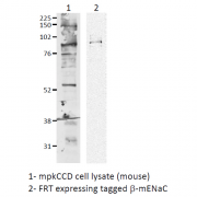 Rabbit Anti-ENaC Antibody used in Western blot (WB) on Mouse mpkCCD cell lysates (SPC-404)