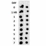 Rabbit Anti-Amyloid Fibrils (OC) Antibody used in Dot blot (DB) on Human Cell lysates (SPC-507)