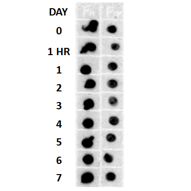 <p>Dot blot analysis using Rabbit Anti-Amyloid Fibrils (OC) Polyclonal Antibody (SPC-507). Tissue: Cell lysates. Species: Human. Primary Antibody: Rabbit Anti-Amyloid Fibrils (OC) Polyclonal Antibody (SPC-507) at 1:500, 1:5000. Beta Amyloid HEPES-NaCl aggregation, showing 1:500 (L) and 1:5000 (R) time lapse dot blot.</p>