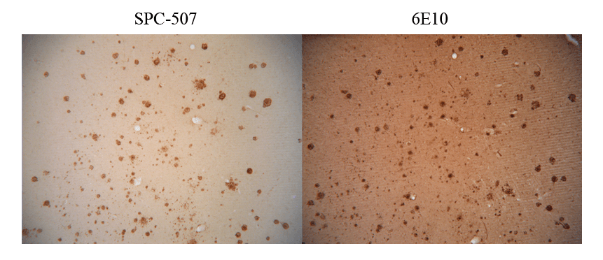 <p>Immunohistochemistry analysis using Rabbit Anti-Amyloid Fibrils (OC) Polyclonal Antibody (SPC-507). Tissue: Alzheimer's Disease brain. Species: Human. Primary Antibody: Rabbit Anti-Amyloid Fibrils (OC) Polyclonal Antibody (SPC-507) at 1:100. Showing no Amyloid Precursor Protein (APP) cross-reactivity (L), but when conducted with monoclonal 6E10 (R) shows considerable APP cross-reactivity. Courtesy of: Kayed, R., Head, E., Thompson, J. L., McIntire, T. M., Milton, S. C., Cotman, C. W., et al. (2003). Common structure of soluble amyloid oligomers implies common mechanism of pathogenesis. Science 300, 486–489. doi: 10.1126/science.1079469.</p>