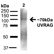 Rabbit Anti-UVRAG Antibody used in Western blot (WB) on Liver (SPC-605)