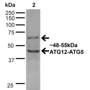 Rabbit Anti-ATG12 Antibody used in Western blot (WB) on HeLa cell lysates (SPC-607)