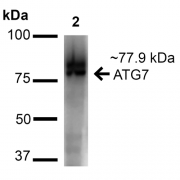 Rabbit Anti-ATG7 Antibody used in Western blot (WB) on Cervical Cancer cell lysates (HeLa) (SPC-610)