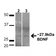 Rabbit Anti-BDNF Antibody used in Western blot (WB) on HeLa and 293T cell lysates (SPC-703)